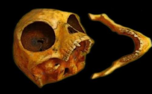 19072016-skull4