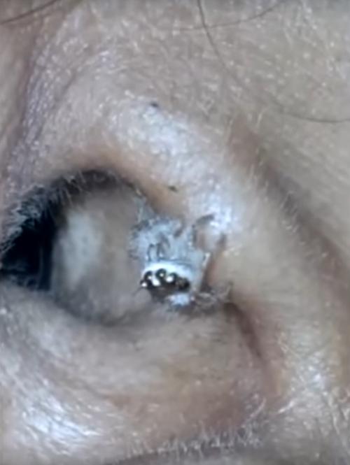 паук стал причиной головных болей