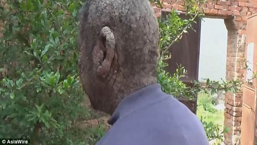 кожа похожа на кору дерева