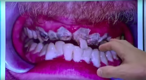 мужчина никогда не чистил зубы