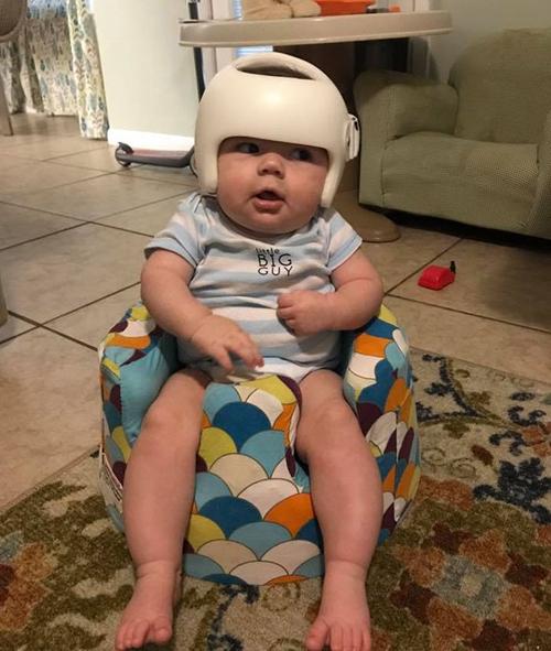 семья поддержала ребёнка в шлеме