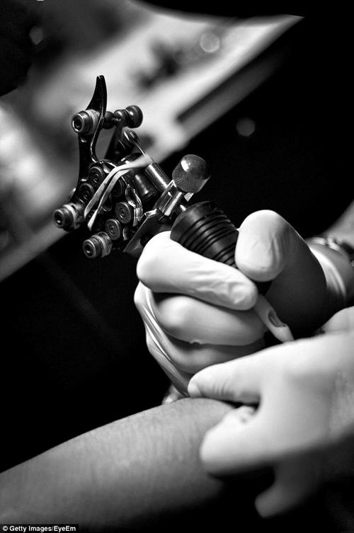 неудачное удаление татуировки