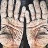 ужасные руки спортсмена