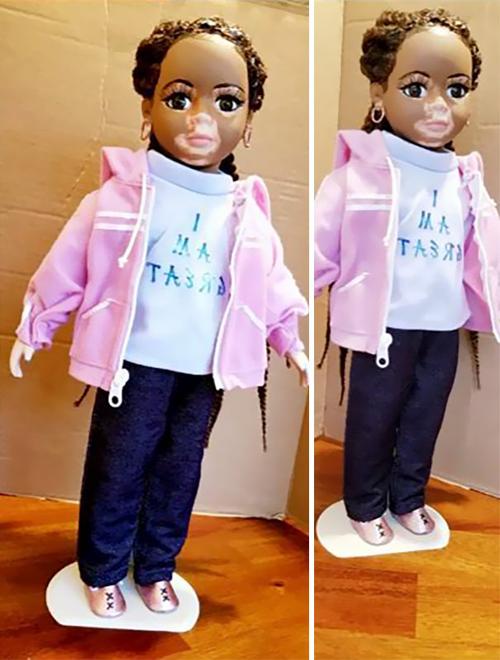 куклы с нарушениями пигментации