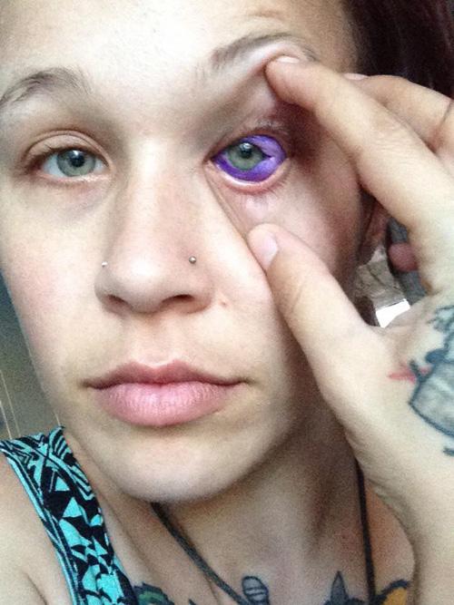 неудачная татуировка на глазу