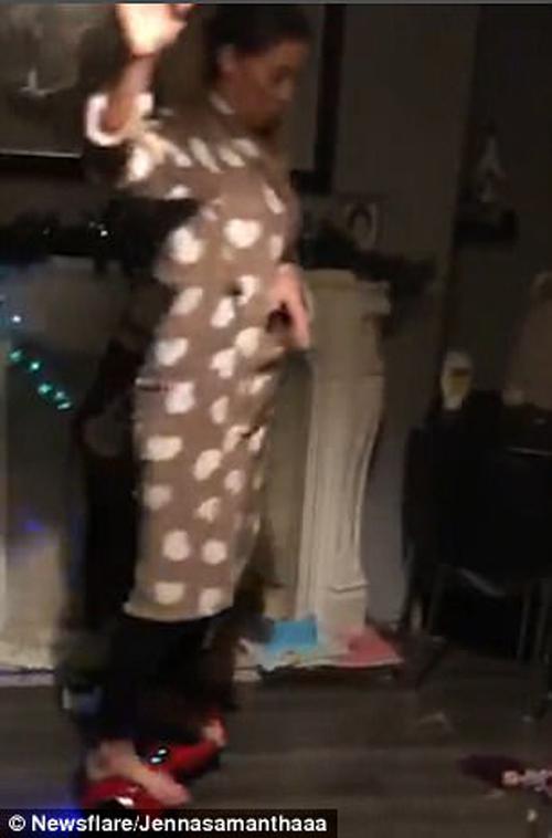 женщина упала с гироскутера