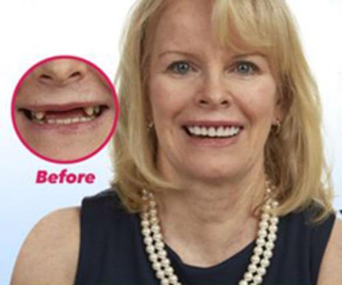 заказанные вставные зубы