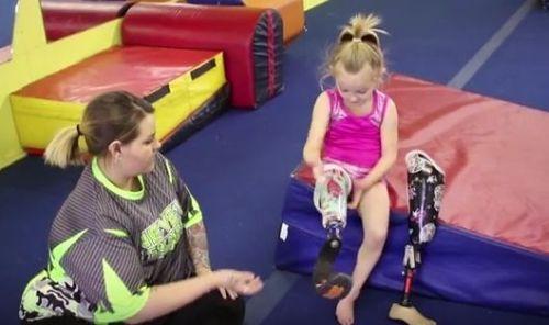 девочка с ампутированной ногой