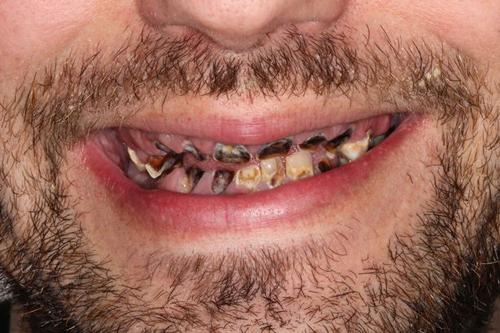 мужчина лишился почти всех зубов