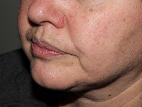 неудачный татуаж губ