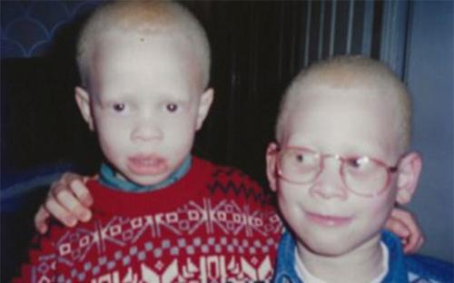 модель с альбинизмом