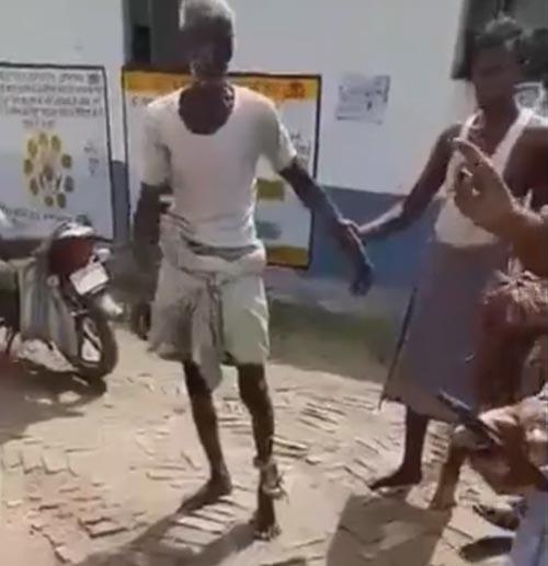 зубы змеи застряли в ноге