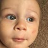 дрон повредил лицо ребёнку