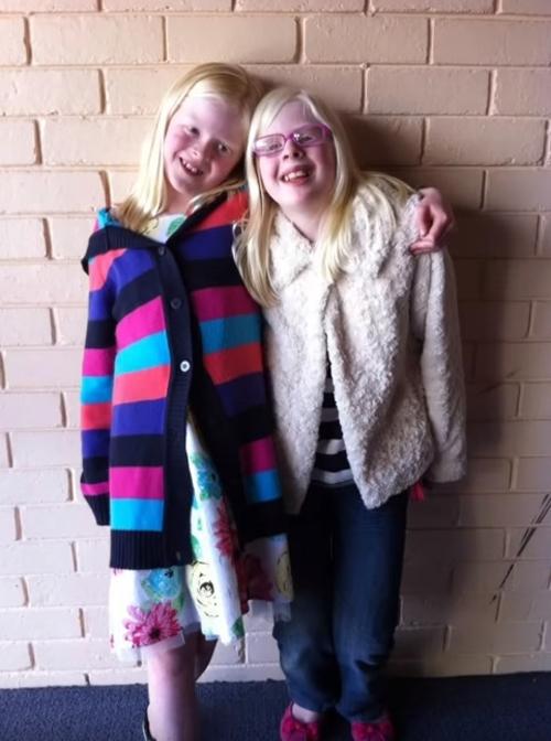 девочки с альбинизмом