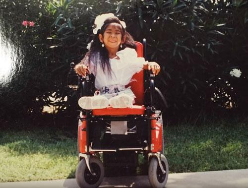 женщина родилась без коленей
