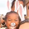 дети с заячьими ушами и носами