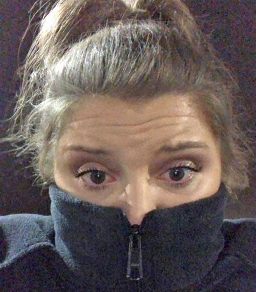 необычная аллергия на холод