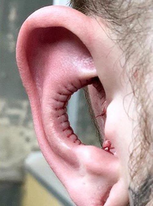 удаление части ушей