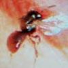 пчёлы в глазу женщины