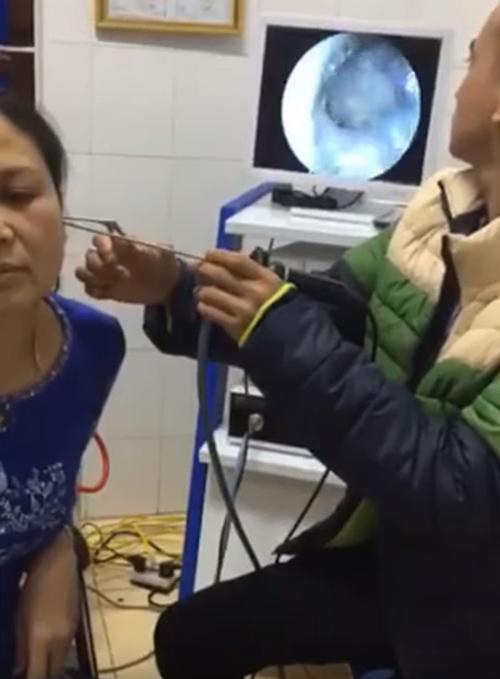 бабочка заползла в ухо женщины