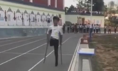бегущий одноногий юноша