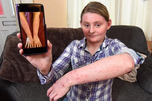 женщина страдает от аллергии