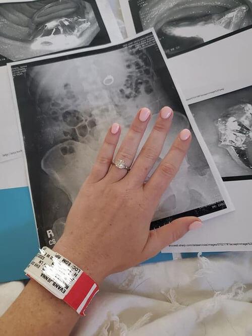 женщина проглотила кольцо