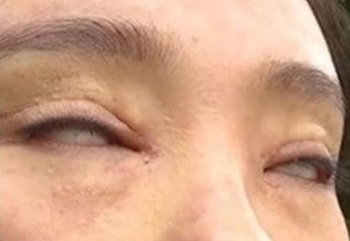женщина не может закрыть глаза