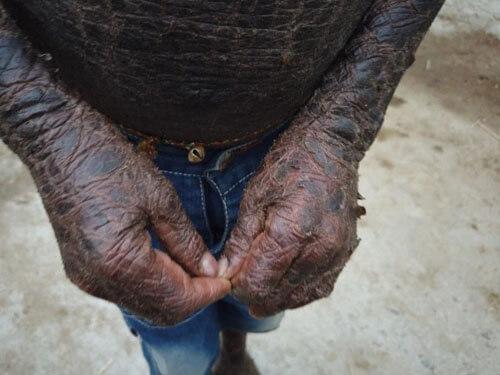 кожа похожа на чешую