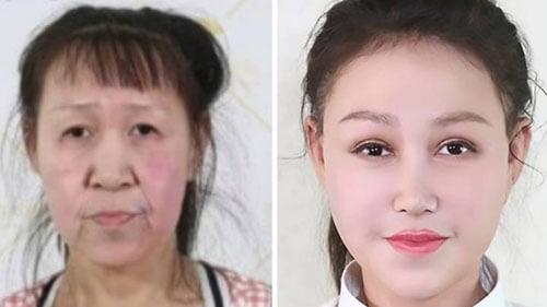 пластическая операция для девушки