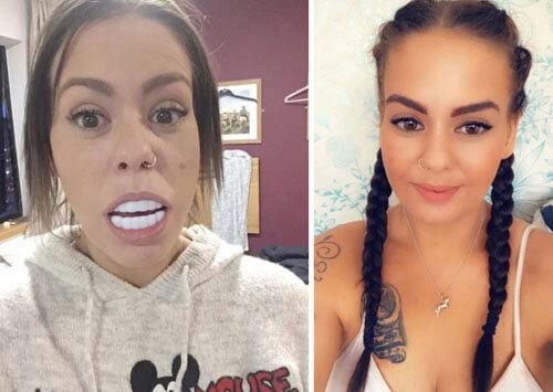 большие фальшивые зубы