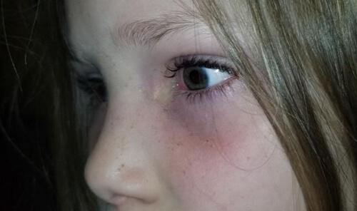 жук выпал из глаза девочки