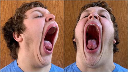 рекордсмен с самым большим ртом