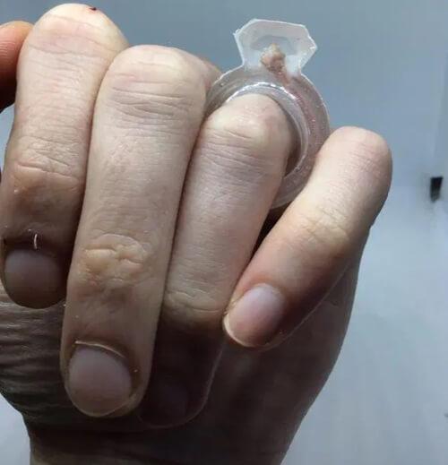 кольцо с мышиным анусом