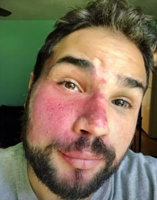 large birthmark on the face