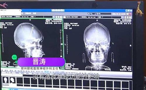 иглы в мозге пациентки