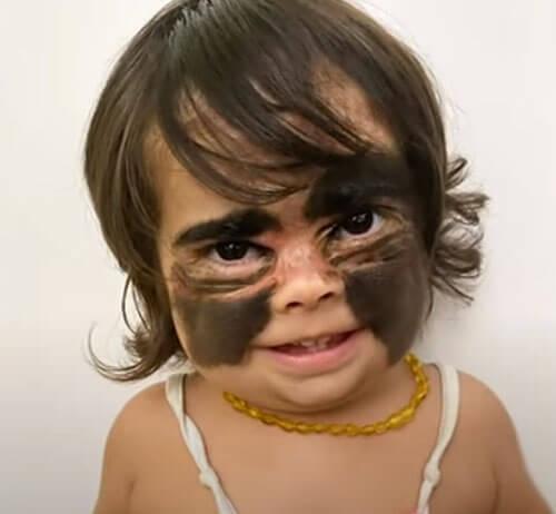 девочка с родимым пятном