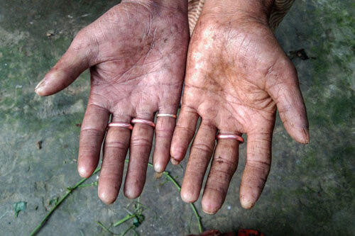 жизнь без отпечатков пальцев