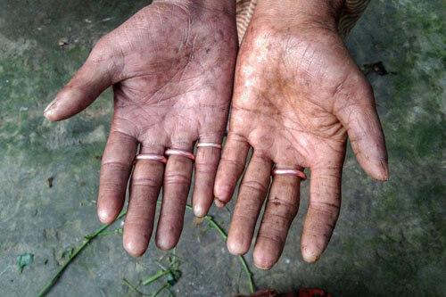 life without fingerprints