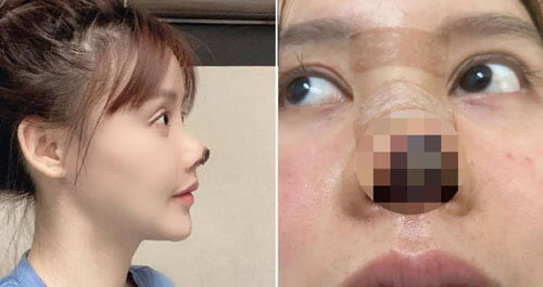 the actress's nose is measured off
