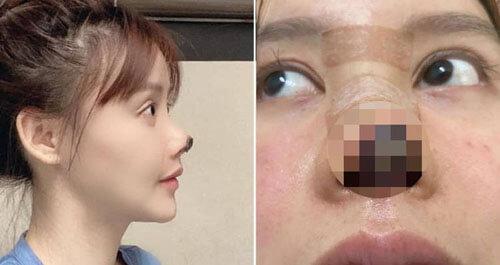 у актрисы отмер кончик носа