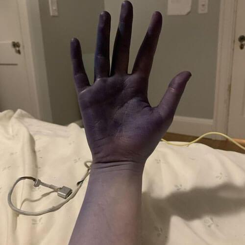 женщина стала фиолетовой