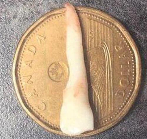 рекордный молочный зуб мальчика