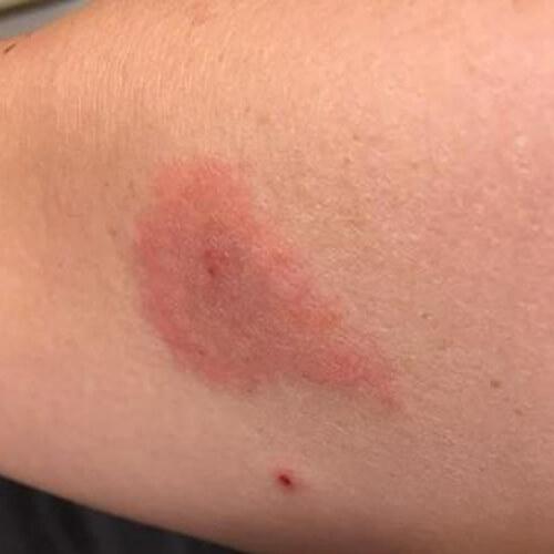 укусы неизвестного насекомого