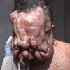 фермер с опухолями на лице