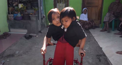 сросшиеся сёстры-близнецы