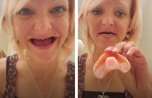мать семейства потеряла зубы