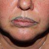 Сделав татуаж губ, женщина стала похожа на клоуна